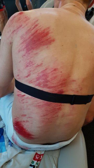 Травмы велогонщиков на Париж-Рубэ-2018